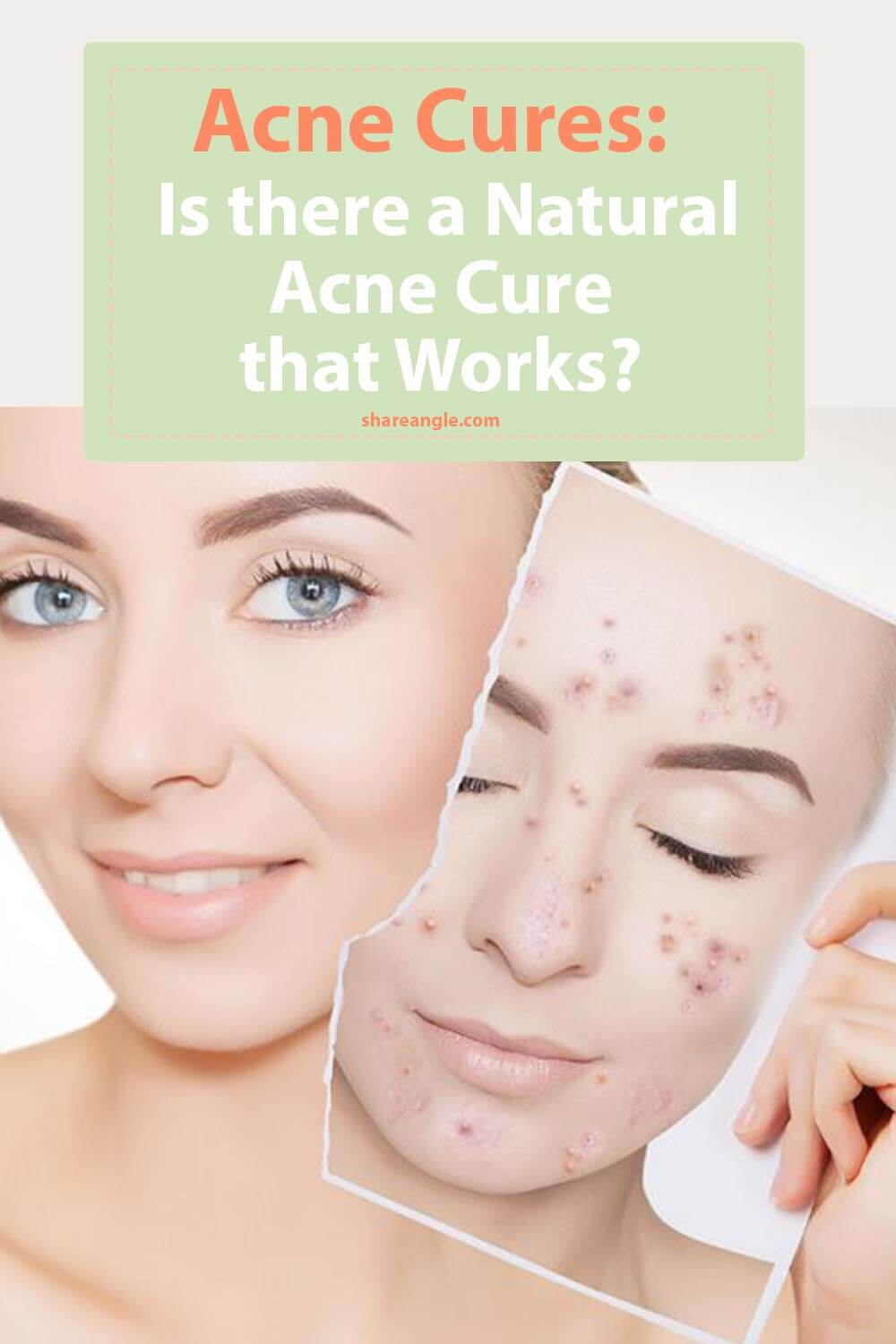 acne cures pin